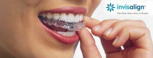 Brown invisalign landing page photo 300x115 s300