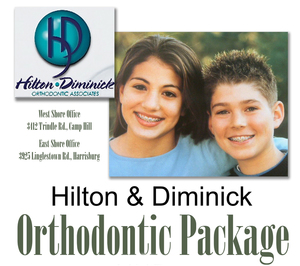 Hilton and diminick s300