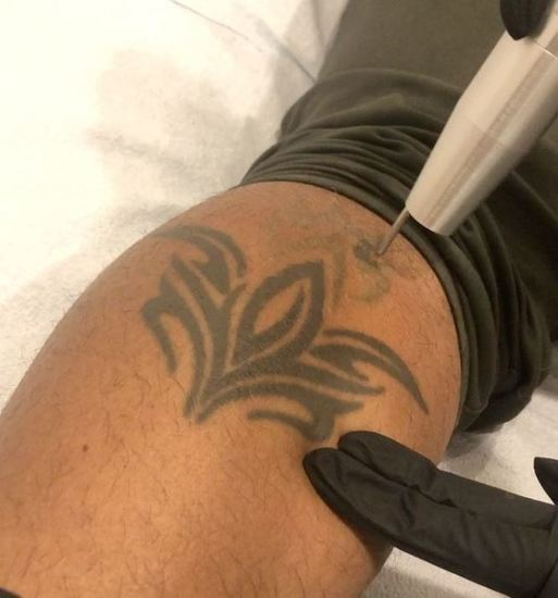 3 Laser Sessions with @bopbop_tattooremoval
